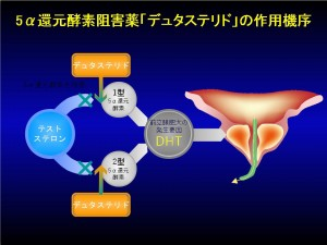 前立腺肥大症ガイドライン